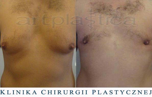 Ginekomastia - przerost sutka - zdjęcie przed i po zabiegu liposukcji
