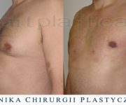 Ginekomastia - liposukcja - zdjęcie przed i 1dzień po zabiegu (widoczne miejsca wkłucia kaniuli)