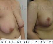 Redukcja piersi (zdjęcie przed i 2 miesiące po operacji) Beauty Group-Artplastica