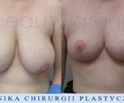 Redukcja piersi - zdjęcie przed i 2 miesiące po operacji
