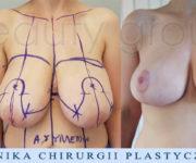 Redukcja piersi - efekt 2 miesiące po operacji