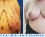 Redukcja piersi - zdjęcie przed i po operacji