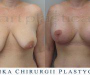 Plastyka piersi - zdjęcie przed i jeden miesiąc po zabiegu - Beauty Group