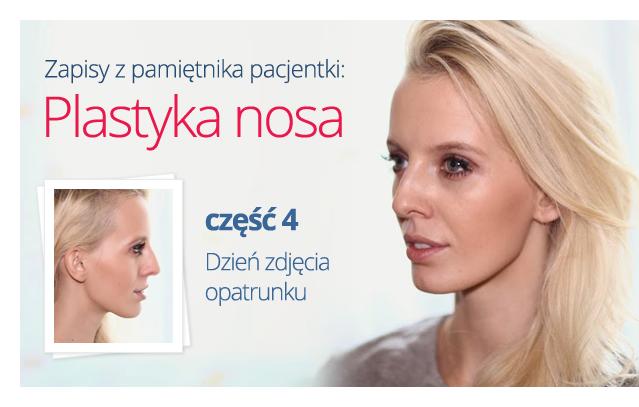 Videoblog -plastyka nosa. Część 4 - dzień zdjęcia opatrunku