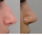 Operacja plastyczna - korekta nosa - Beauty Group