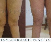 Liposukcja kolan - Beauty Group - Artplastica