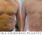 Liposukcja - odsysanie tkanki tłuszczowej - zdjęcia przed i po zabiegu - Beauty Group - Artplastica