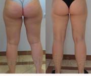 Liposukcja - odsysanie tkanki tłuszczowej - zdjęcia przed i po zabiegu