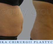 Liposukcja - odsysanie tkanki tłuszczowej- brzuch - zdjęcia przed i po zabiegu - Beauty Group