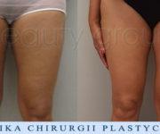 Liposukcja - odsysanie tkanki tłuszczowej - uda wewnętrzne - zdjęcia przed i po zabiegu - Beauty Group