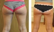 liposukcja-posladki