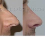 Korekta nosa - zdjęcia przed i po operacji