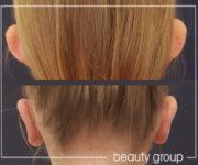 odstające uszy - korekta chirurgiczna - zdjęcia przed i po zabiegu