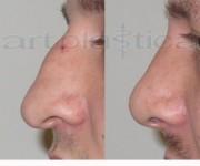 Korekta kształtu nosa - zdjęcia przed i po zabiegu