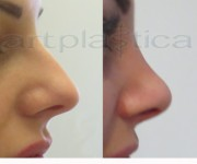 Operacja plastyczna - korekta nosa - zdjęcie przed i po operacji