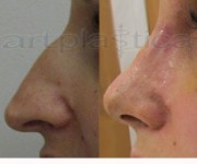 Operacja plastyczna - korekta nosa - 10 dni po zabiegu - Beauty Group - Artplastica