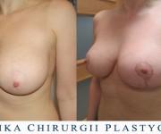 Podniesienie - plastyka biustu - zdjęcia przed i po zabiegu (2 miesiące po operacji)
