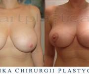Podniesienie - plastyka biustu - zdjęcia przed i 2 miesiące po zabiegu - Beauty Group - Artplastica