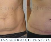 Plastyka powłok brzucha - zdjęcia przed i po zabiegu