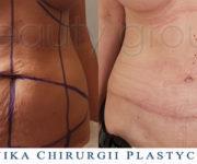 Operacja plastyczna - plastyka powłok brzucha - 2 miesiące po operacji - Beauty Group