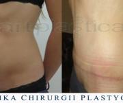 Plastyka brzucha - 2 miesiące po zabiegu