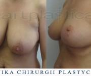 Podniesienie - plastyka biustu - zdjęcia przed i po zabiegu