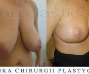 Redukcja, podniesienie - plastyka biustu - zdjęcia przed i po zabiegu