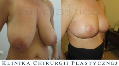 Redukcja, plastyka piersi - zdjęcia przed i po operacji