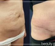 Plastyka powłok brzucha - zdjęcia przed i po operacji