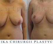 Podniesienie - plastyka biustu - zdjęcia przed i po zabiegu - Beauty Group - Artplastica