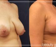 Powiększenie biustu - implanty - oraz plastyka piersi - zdjęcia przed i po operacji