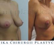 Powiększenie biustu z plastyką - klika dni po operacji