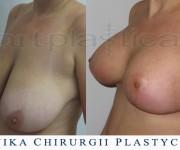 Powiększenie biustu z plastyką