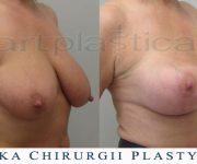Podniesienie piersi oraz powiększenie implantem - zdjęcia przed i po zabiegu - Beauty Group