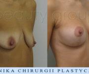 Powiększenie biustu z plastyką- zdjęcia przed oraz 2 miesiące po operacji - Beauty Group
