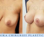 Powiększenie biustu z plastyką - Beauty Group