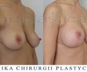 Powiększenie biustu z plastyką - Beauty Group - Artplastica