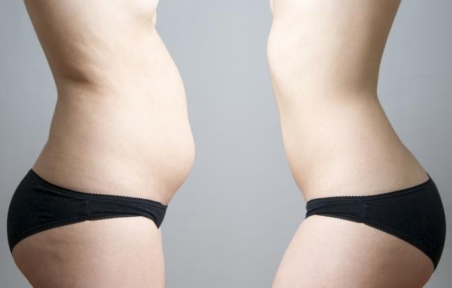 Operacja przepukliny klejem tkankowym