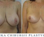 Redukcja piersi - zdjęcie przed i po zabiegu