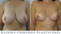 Zmniejszenie biustu - zdjęcia przed i po operacji