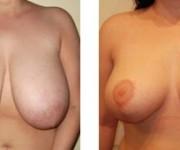 zdjecia po operacji zmniejszenia biustu