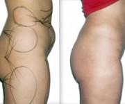 Odsysanie tkanki tłuszczowej