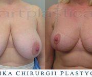 Zmniejszenie biustu - zdjęcia przed oraz 6 tygodni po operacji