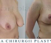 Zmniejszenie i podniesienie biustu - zdjęcie przed i po zabiegu