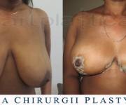 Redukcja piersi - kilka dni po operacji