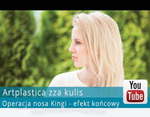 Videoblog-operacja-nosa Kingi - efekt-koncowy