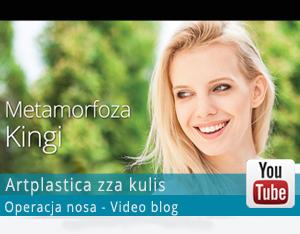 Metamorfoza Kingi - operacja plastyczna Kingi - video blog