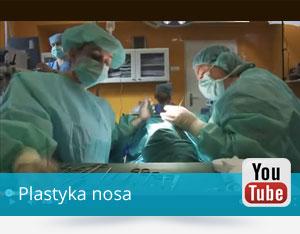 operacja plastyczna nosa - korekcja