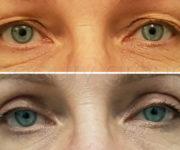 Korekta powiek górnych - zdjęcie przed i po zabiegu