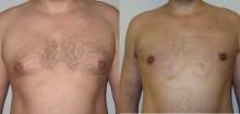 Ginekomastia - liposukcja - odsysanie tłuszczu - zdjęcia przed i kilka dni po operacji